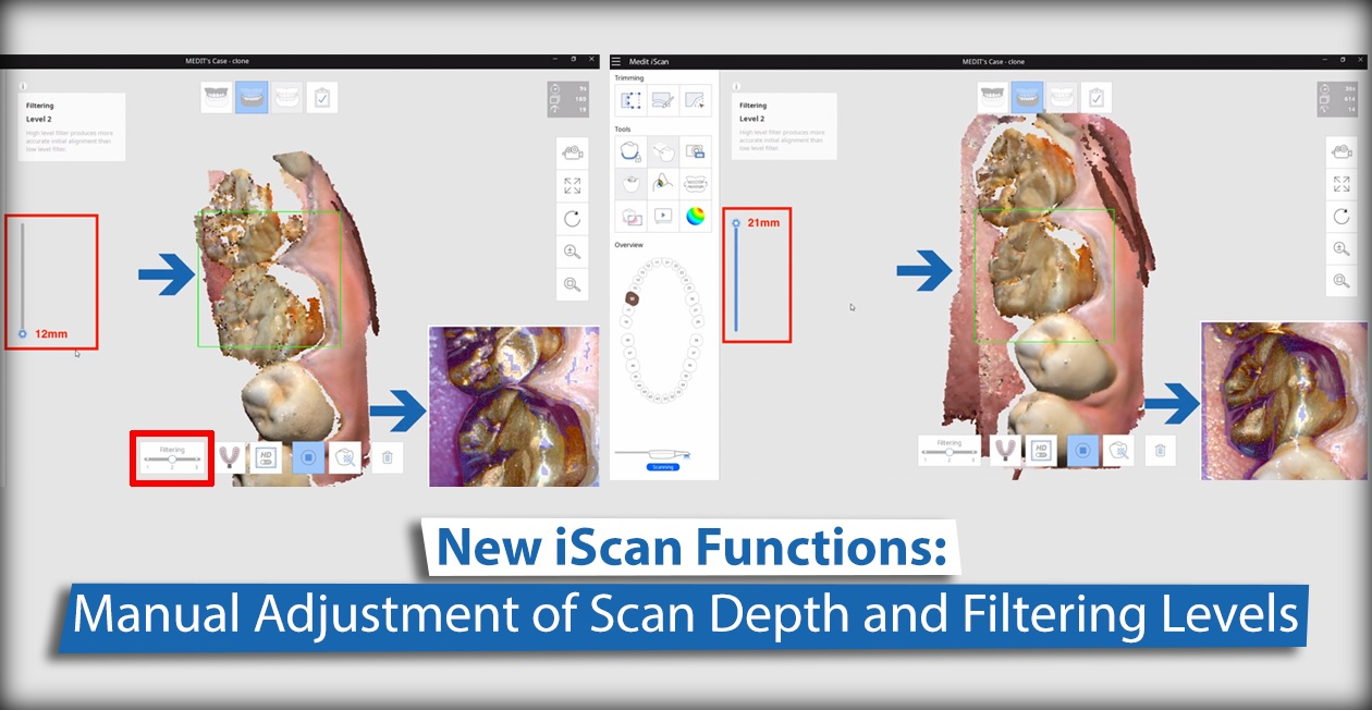 New iScan Functions: Manual Adjustment of Scan Depth and Filtering Levels