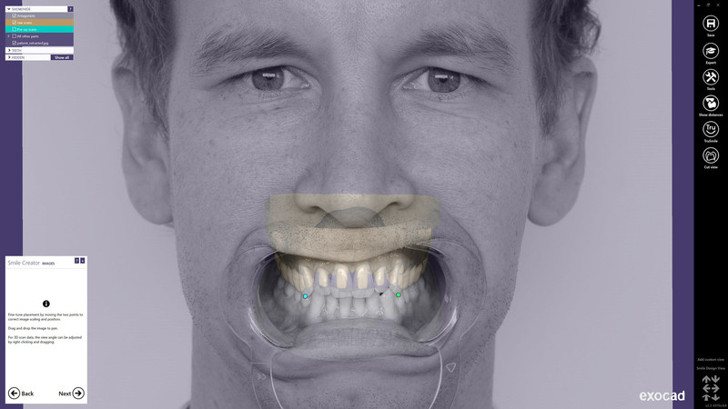 Make your patients smile with the new Smile Creator!