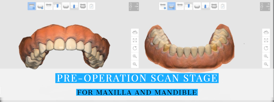 New iScan Function: Pre-Operation Scan Stage